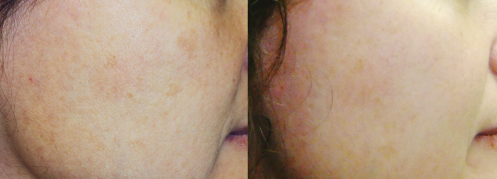 q-Switch Nd: YAG Laser on cheek