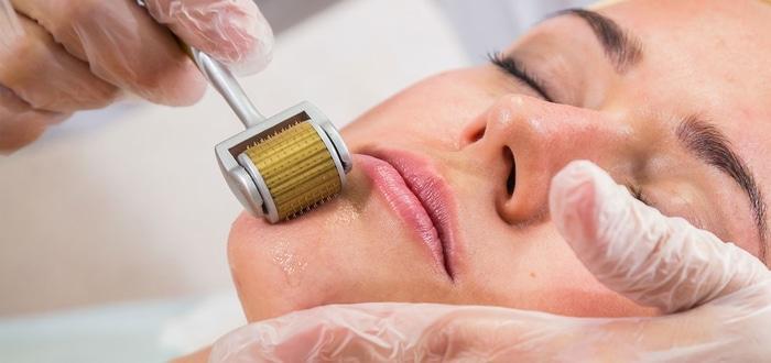 dermaroller to treat acne