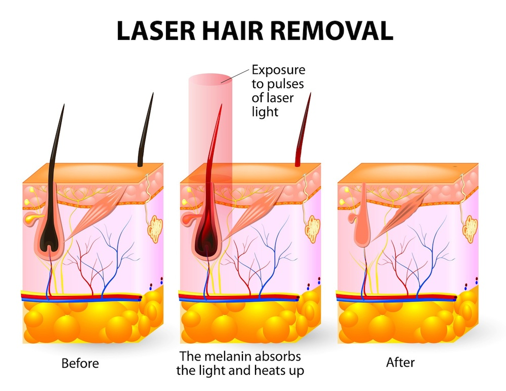 process of hair removal using laser