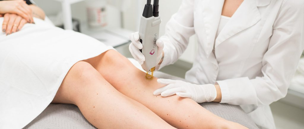 permanent hair removal with laser