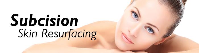 subcision skin resurfacing