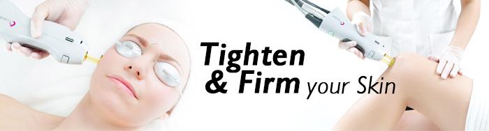 tighten your skin with candela laser