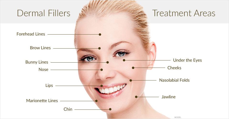 dermal filler injection face area