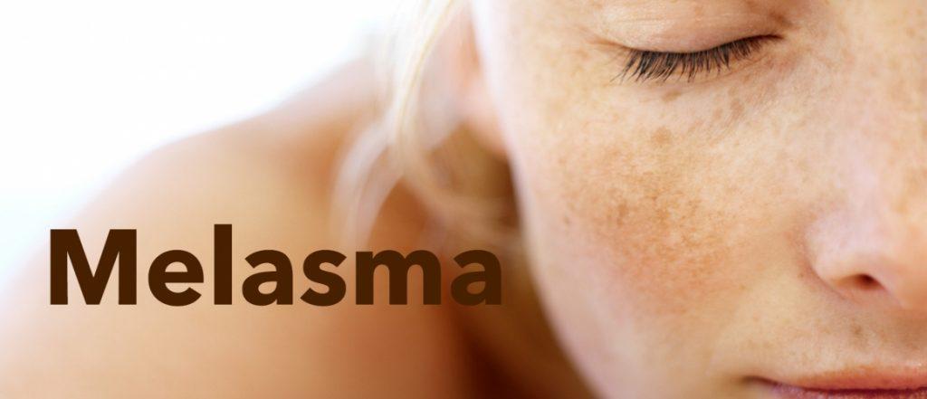malasma treatment