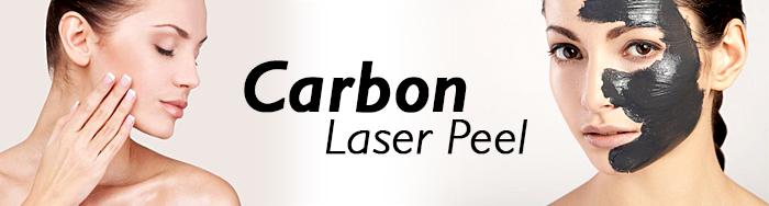carbon laser peel to shrink large pores