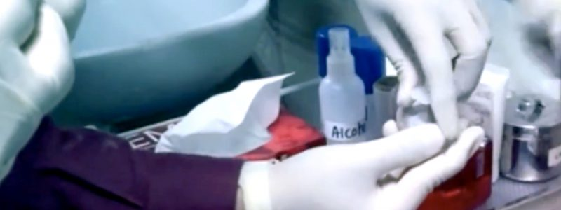 Stem Cell Hair Treatment 02