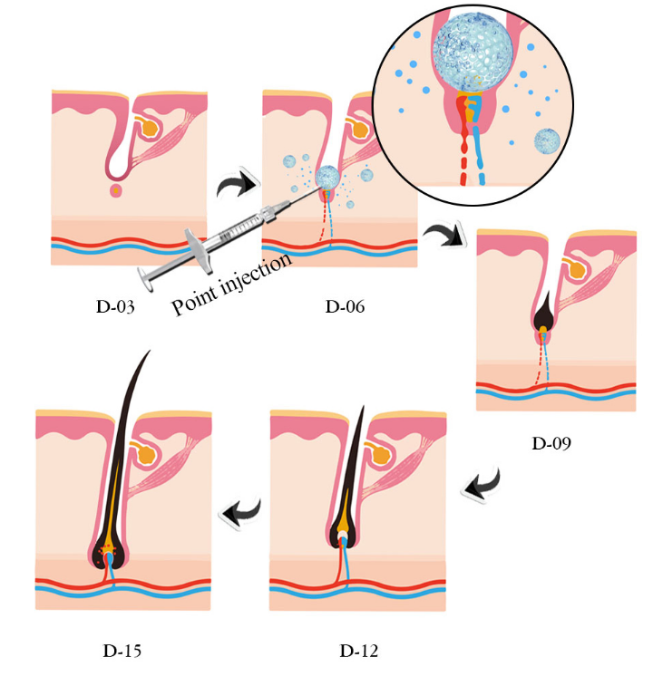 Intradermal Injection Prevent Hair Loss