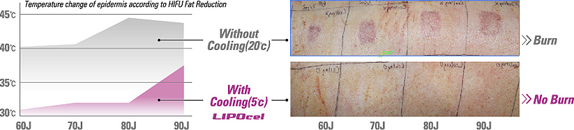 LIPOCEL Treatment Effect