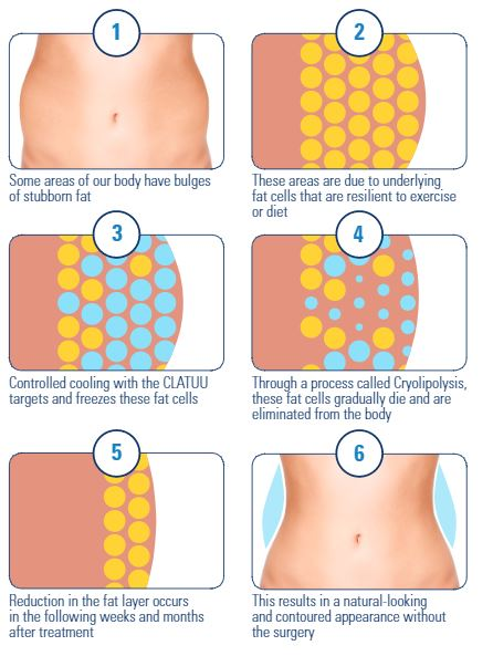 clatuu fat freezing process