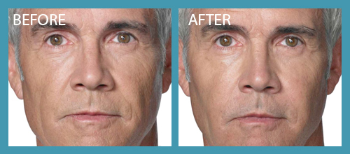Radiesse Filller Before After Premier Clinic 04