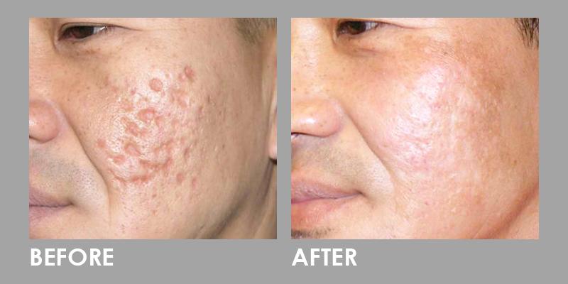 After Dermaroller Treatment