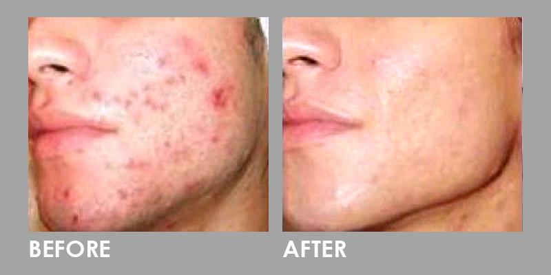 Less Acne After Dermaroller