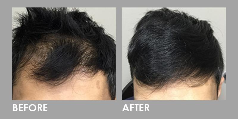 LED Photomodulation Therapy Hair Loss