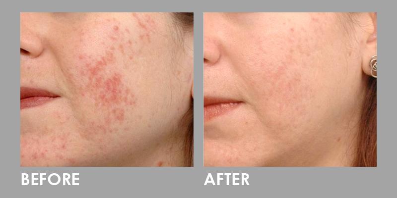 LED Photomodulation Therapy on cheeks area