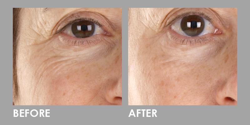 LED Photomodulation Therapy on eye area