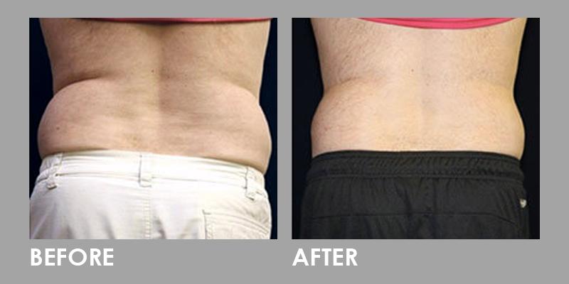 Vanquish Fat Reduction on Waist