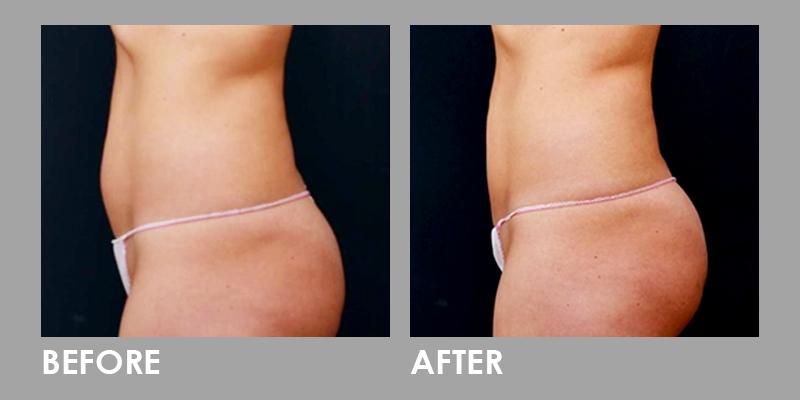 Vanquish Fat Reduction on Tummy