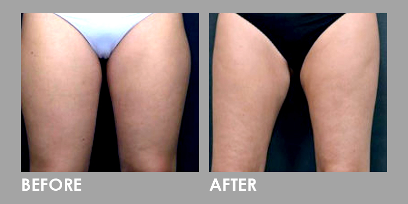 Vanquish Fat Reduction on Thighs