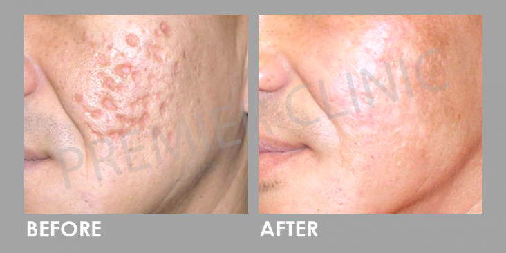 Subcision Before After