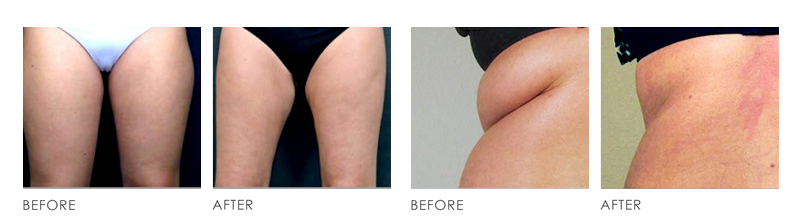 Vanquish Fat Reduction Treatment before after