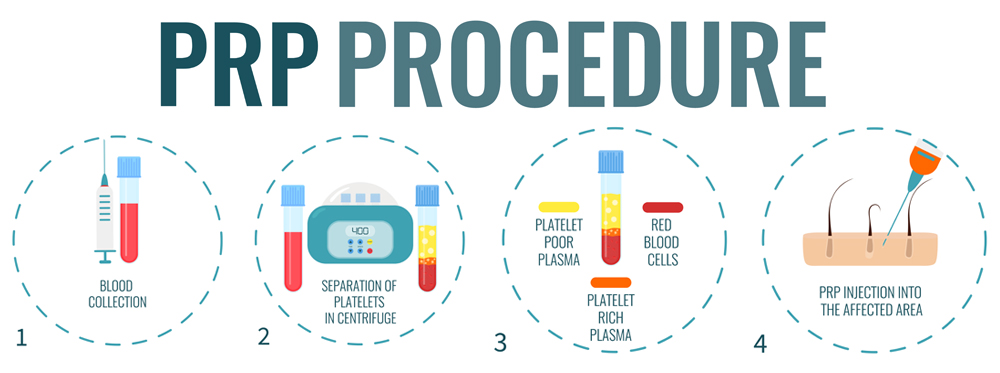 Plasma-Rich Platelets treatment
