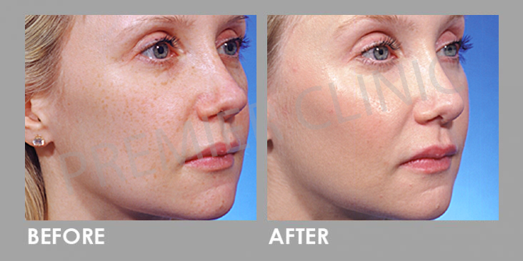 Carbon Laser Peel before and after
