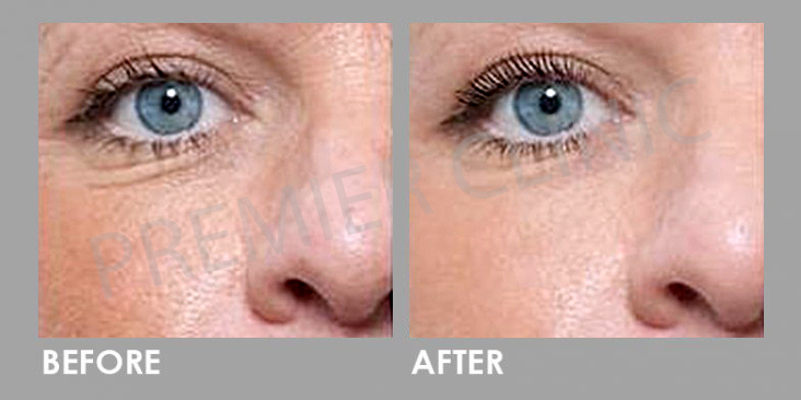 Mesotherapy Before After