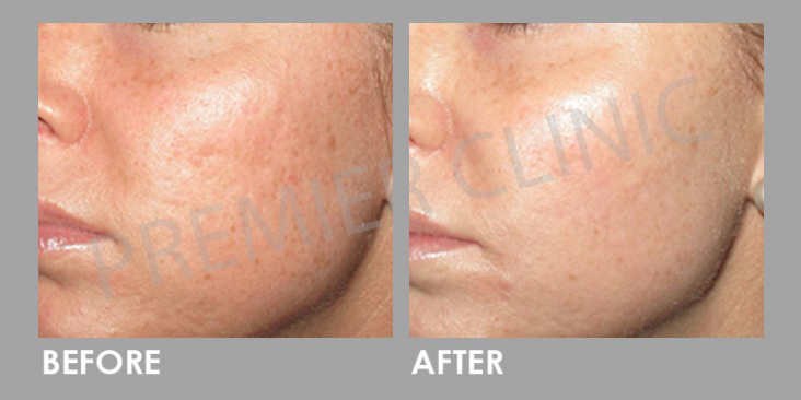 PRP Therapy Before After