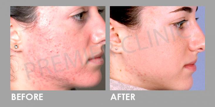 SilkPeel Dermalinfusion Before After