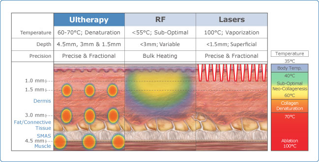 Ultherapy High Intensity Focused Ultrasound Hifu For