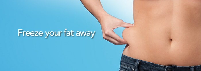 freeze your fat away with Zeltiq Coosculpting