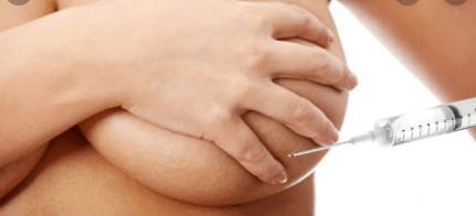 treatment breast filler