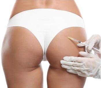 5-buttock filler