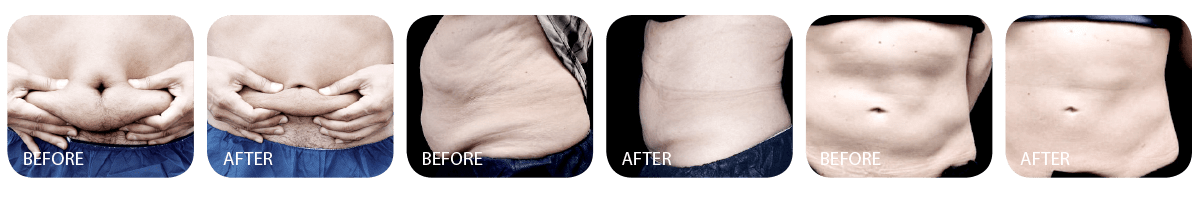 Cool Sculpting Promo before after