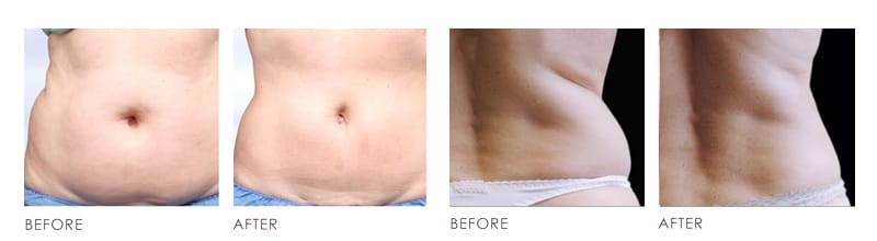 Fat Loss Before After