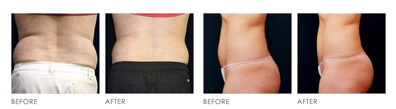 HCG Fat Loss Treatment before after