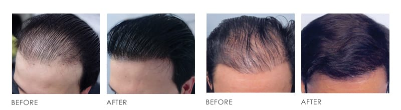Hair Transplaint Before After