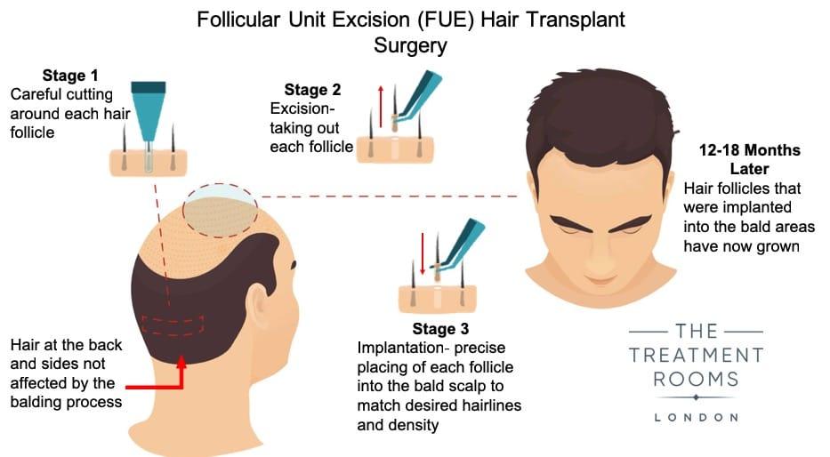 Hair-Transplant-Surgery-Diagram