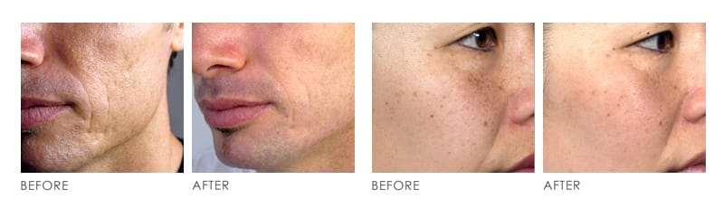 ED PHOTOTHERAPY before after