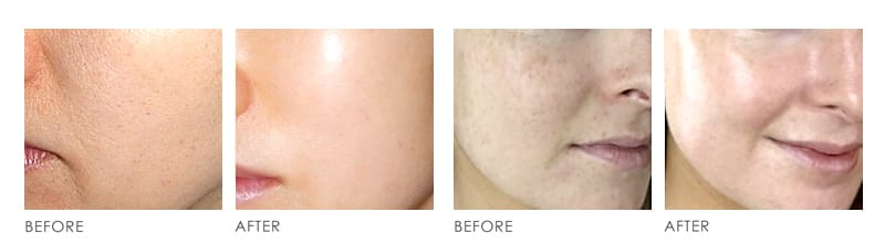 Stem Cell Before After