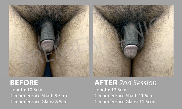2nd Penis Enlargement Before After