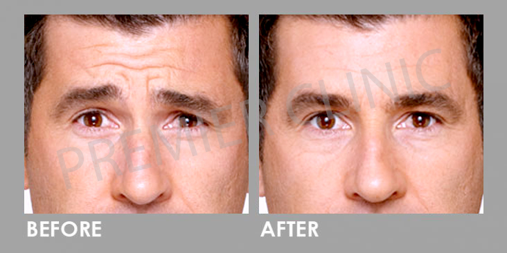 Before & After Botulinum Toxin