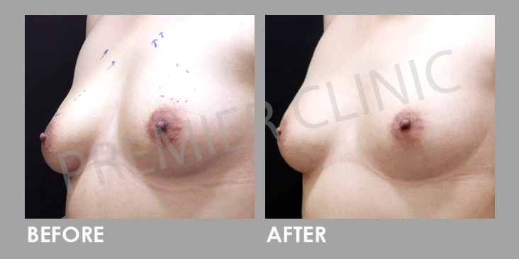 Breast Botox Before After