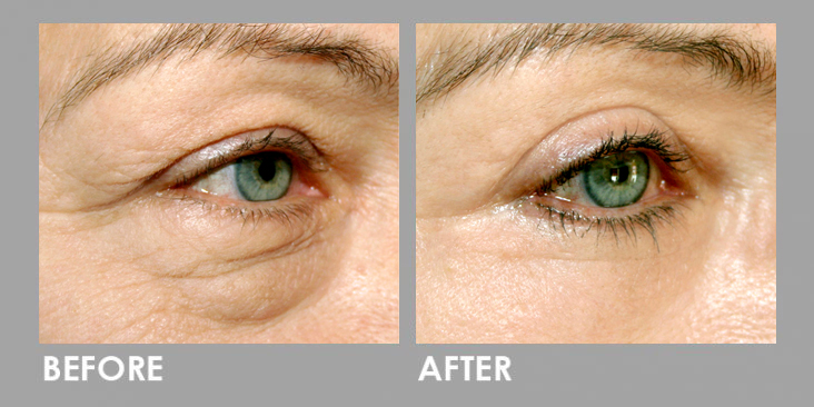Derma Filler Before After