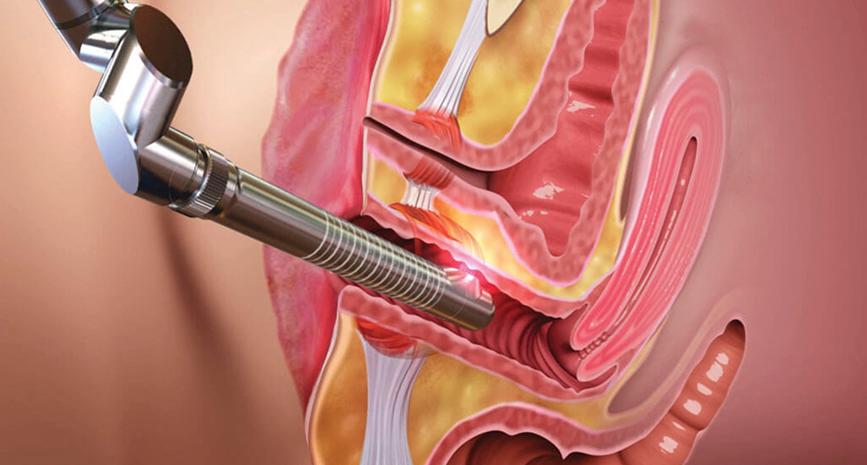 Laser Vagina Rejuvenation