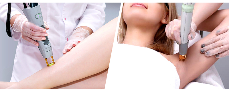 hair removal malaysia