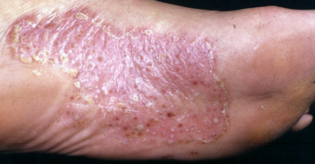 Palmoplantar Psoriasis