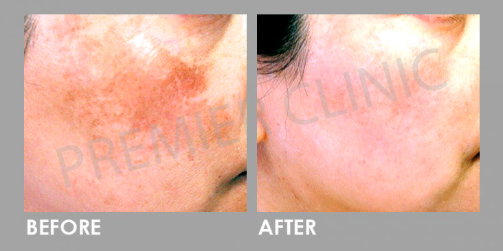 Pico Laser Before After