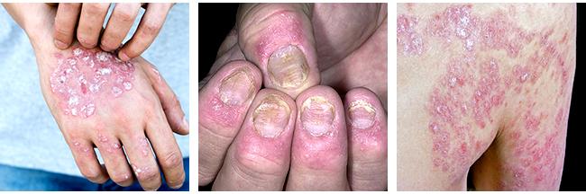 The Symptoms of Psoriasis