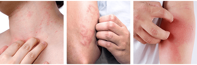 What are The Symptoms of Eczema